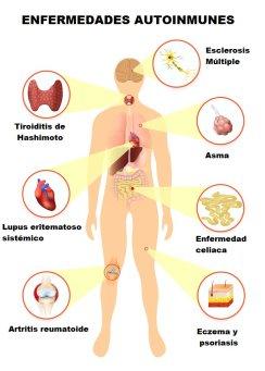 enfermedades autoinmunes mas conocidas