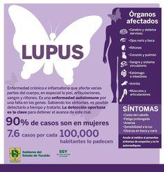 Como nos efecta el lupus